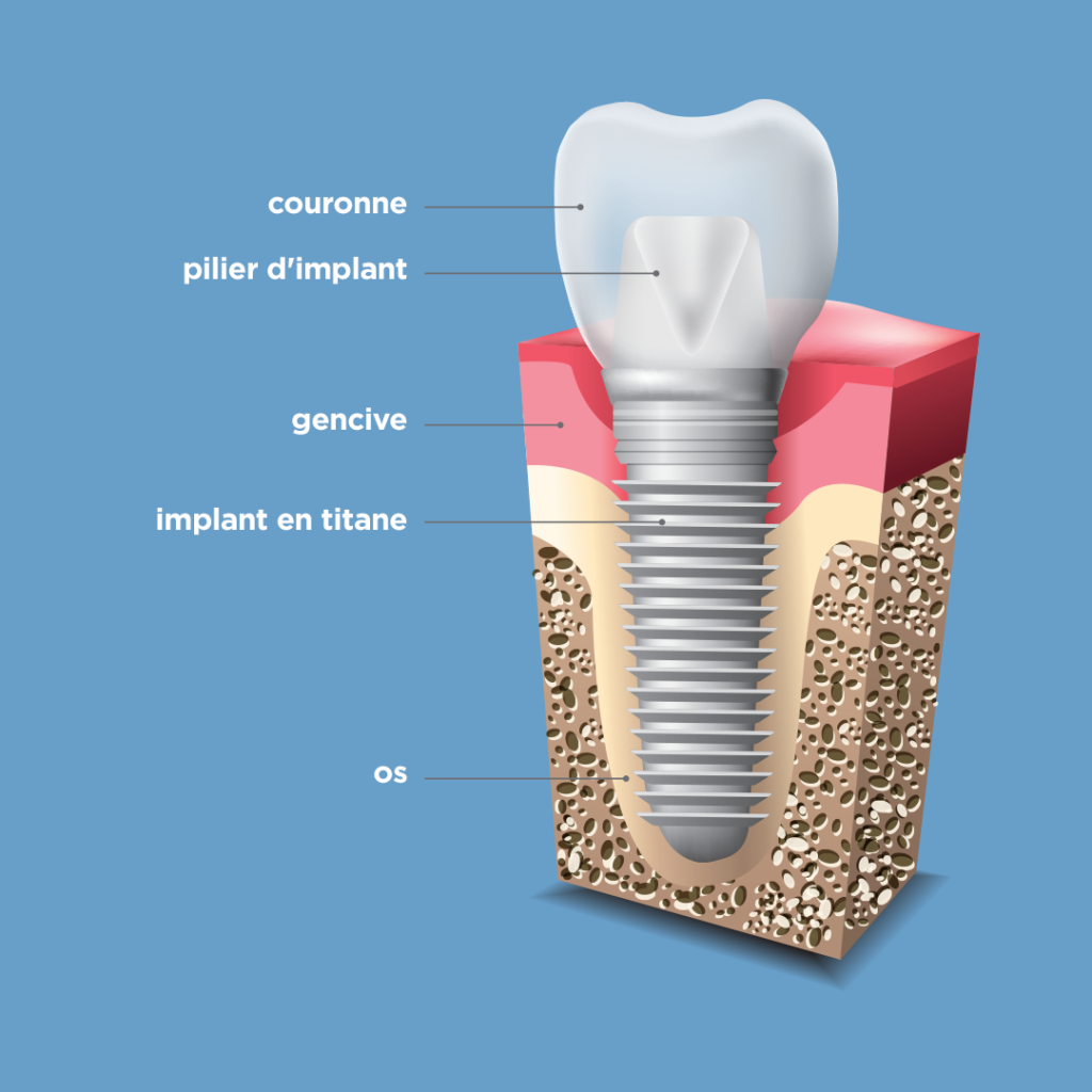 Structure de l'implant dentaire